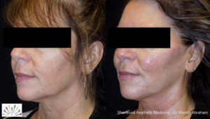 Injectables - Sherwood Aesthetic Medicine - Injectables |